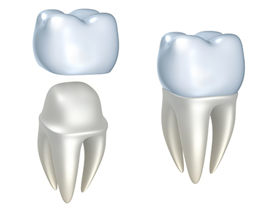 Dental Crowns ThinkstockPhotos 148797914 width of 400 pixels